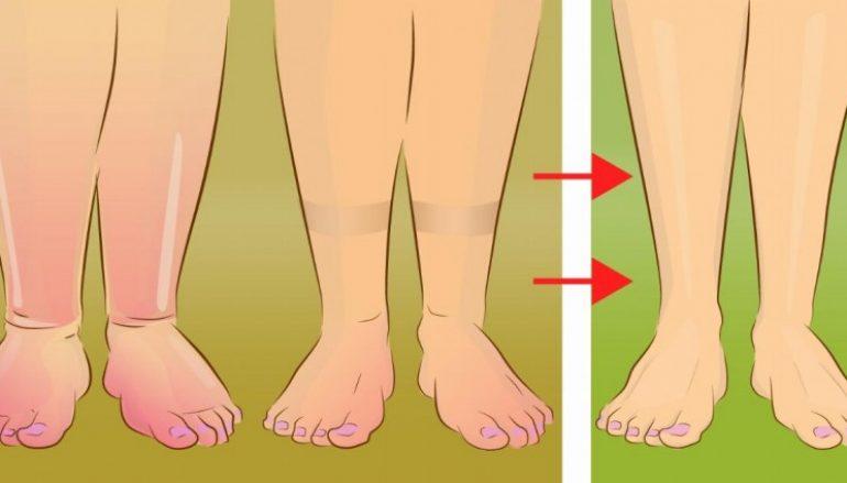 8 ανησυχητικές παθήσεις που κάνουν τα πόδια σας να πρήζονται!