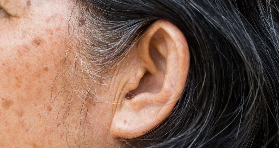 Εάν έχετε αυτό το σημάδι στο αυτί σας, μπορεί να κινδυνεύετε απόεγκεφαλικό