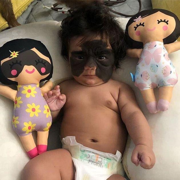 ΗΠΑ: Βρέφος που γεννήθηκε με το σημάδι του «batman» στο πρόσωπο βιώνει απάνθρωπορατσισμό