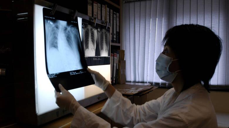 Μυστηριώδης πνευμονία προκαλεί ανησυχία στηνΚίνα