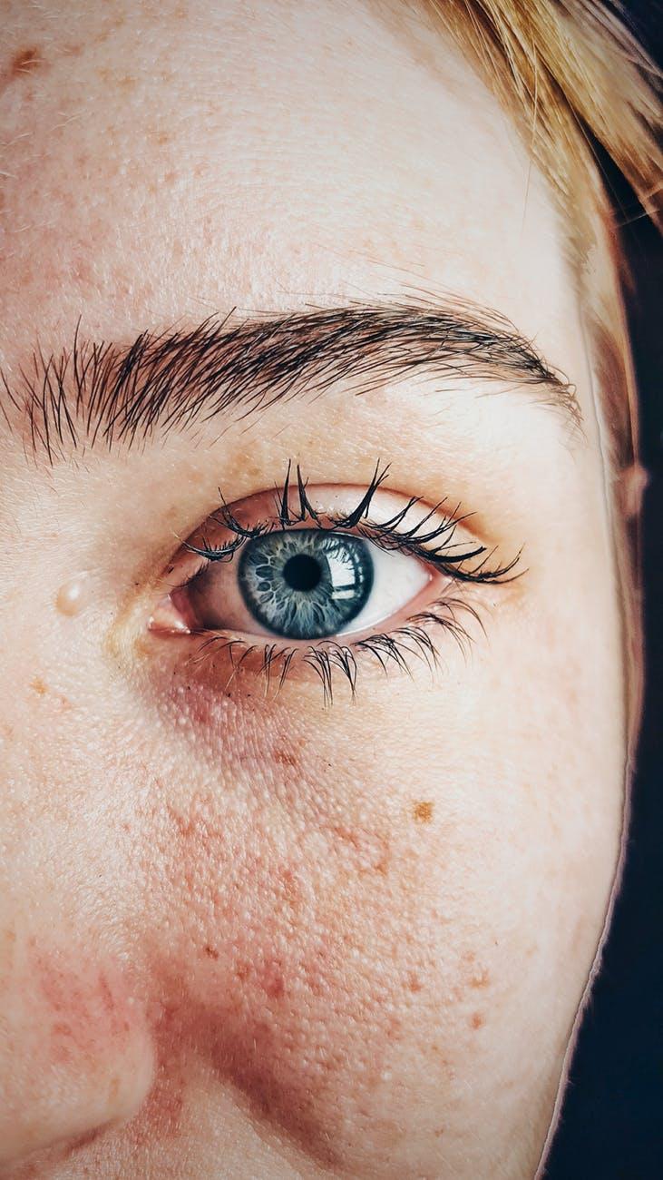 Θολή όραση: Δεκατρείς πιθανέςαιτίες